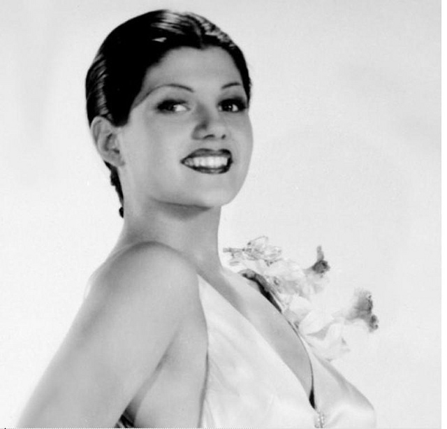 Rita Hayworth Hairline Before After Rita hayworth rita cansino
